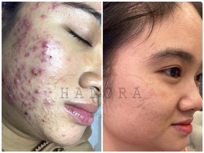 Trước và sau khi điều trị mụn tại Vân Nguyễn Spa